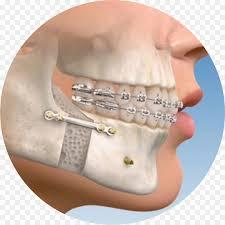 Maxillofacial area surgery